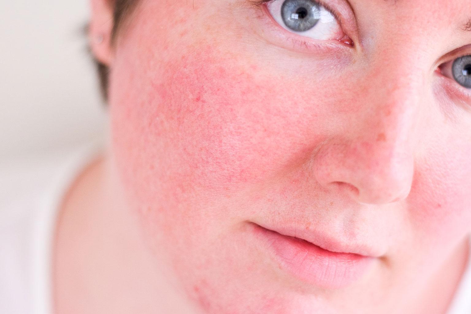 Польза шоколадной маски при покраснении лица